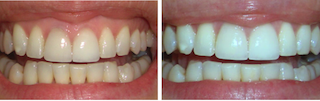 Teeth Whitening Dublin Cork