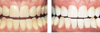 Teeth Whitening Dublin, Cork,Limerick