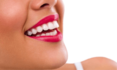 White Smile Clinic: How to maintain your whitening results
